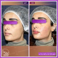 نمونه کار ژل لب در کلینیک ایرانیان