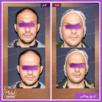 نمونه کار بوتاکس در کلینیک ایرانیان