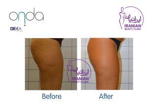 قبل و بعد از استفاده از دستگاه اُندا